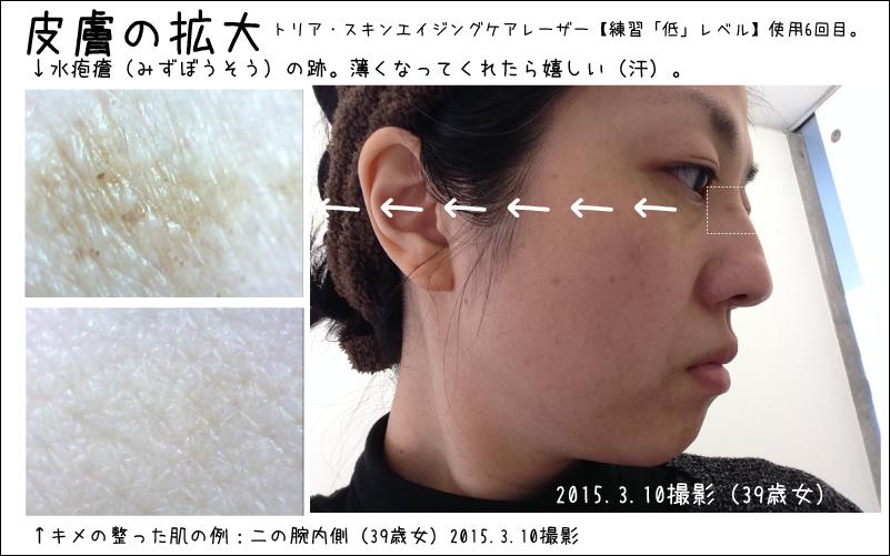 水疱瘡の跡にも効果があるかもしれないと、広報担当者の方から聞きましたので実験中です。