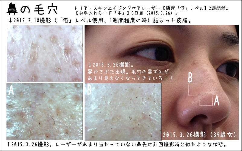 トリアスキンエイジングケアレーザー2週間目の肌の経過画像
