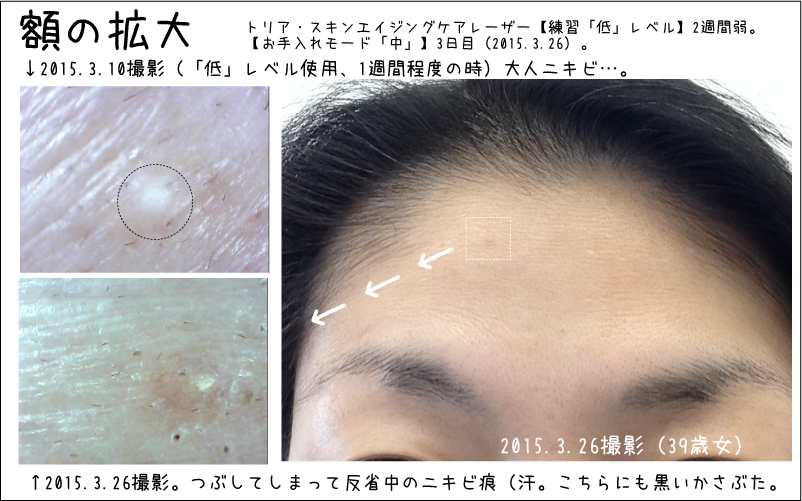 おでこのシワが若干薄くなったようななっていないような…トリアスキンエイジングケアレーザー経過2週間目の肌