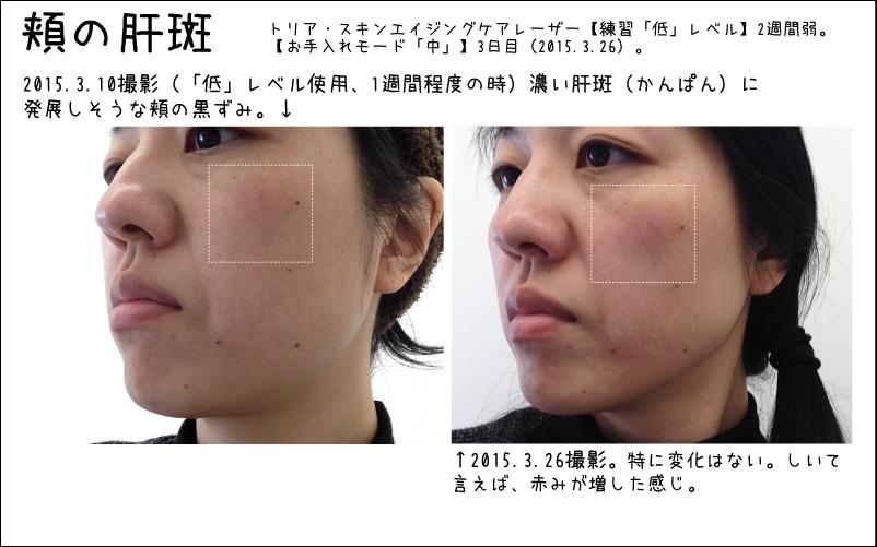 頬の肝斑みたいなシミには変化なし。ちょっと肌が赤みがかっている感じ。