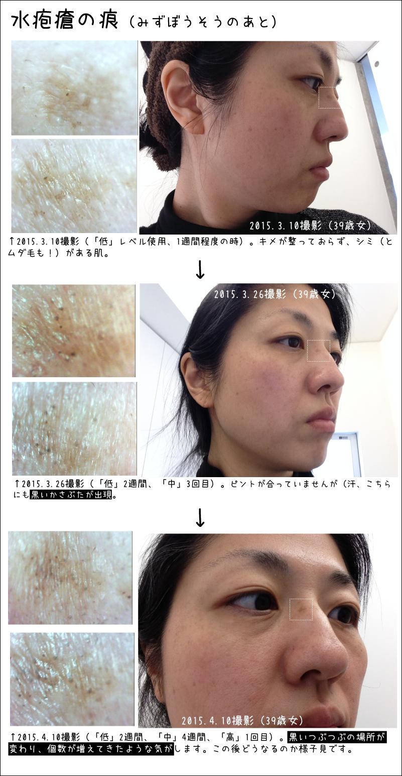 水疱瘡の痕の観察。トリアエイジングケアレーザーの肌の経過。