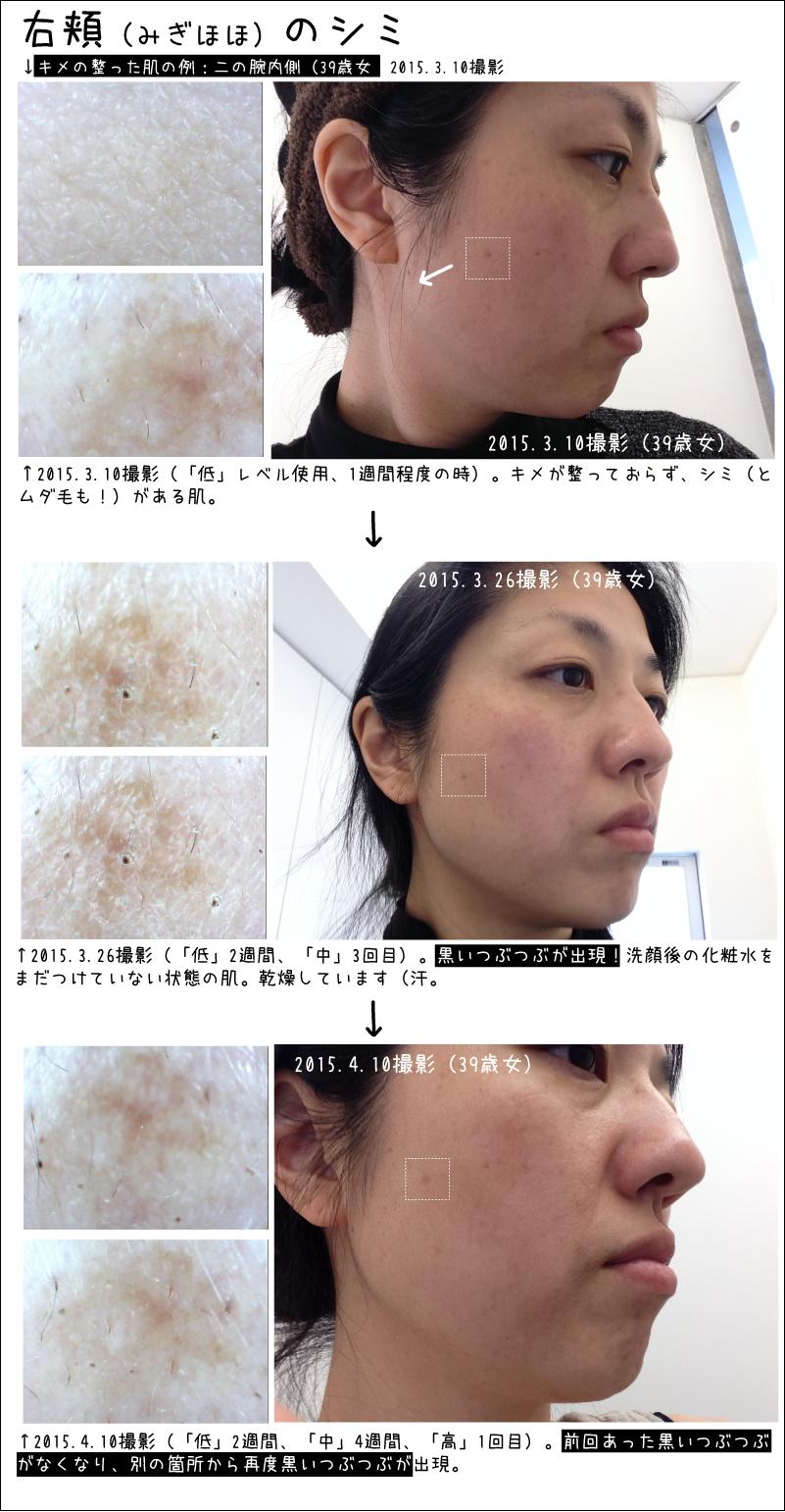 トリアエイジングケアレーザー 頬のシミの変化 20150410