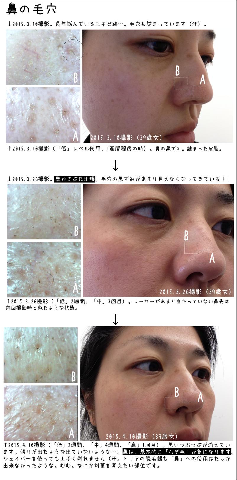 トリアエイジングケアレーザーで肌が引き締まるということなので、鼻の毛穴も引き締まってくれないかとお手入れ中です。肌の経過写真。