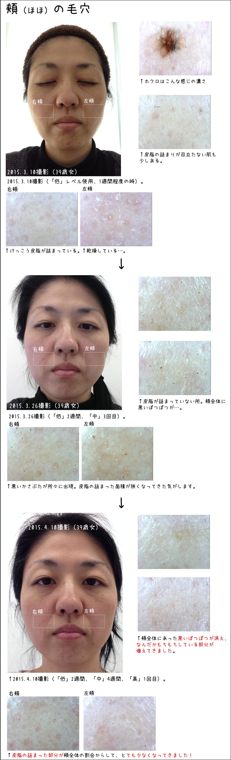 頬の毛穴が引き締まり、肌がもちもちし始めました。トリスキンエイジングケアレーザーの肌の変化