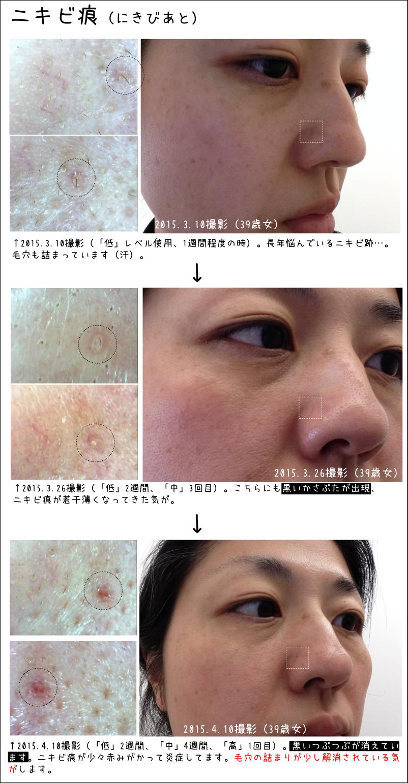 トリアレーザー ニキビ痕の変化20150410