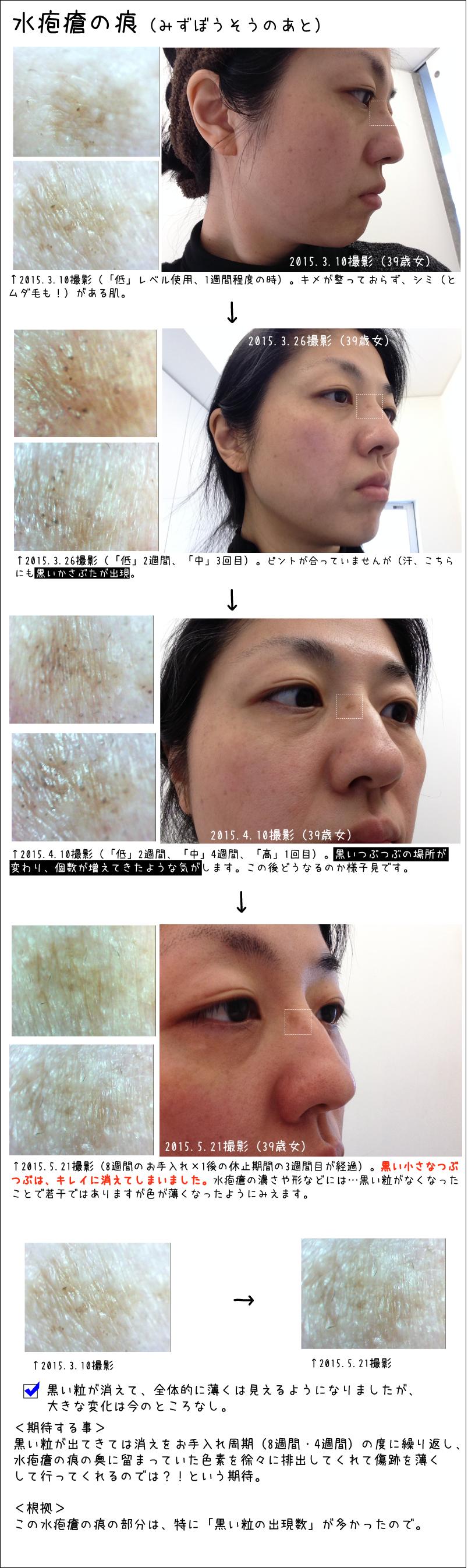 水疱瘡の痕(みずぼうそうのあと)。2015.5.21撮影(8週間のお手入れ×1後の休止期間の3週間目が経過)。黒い小さなつぶつぶは、キレイに消えてしまいました。水疱瘡の濃さや形などには…黒い粒がなくなったことで若干ではありますが色が薄くなったようにみえます。黒い粒が消えて、全体的に薄くは見えるようになりましたが、大きな変化は今のところなし。<期待する事>黒い粒が出てきては消えをお手入れ周期(8週間・4週間)の度に繰り返し、水疱瘡の痕の奥に留まっていた色素を徐々に排出してくれて傷跡を薄くして行ってくれるのでは?!という期待。<根拠>この水疱瘡の痕の部分は、特に「黒い粒の出現数」が多かったので。