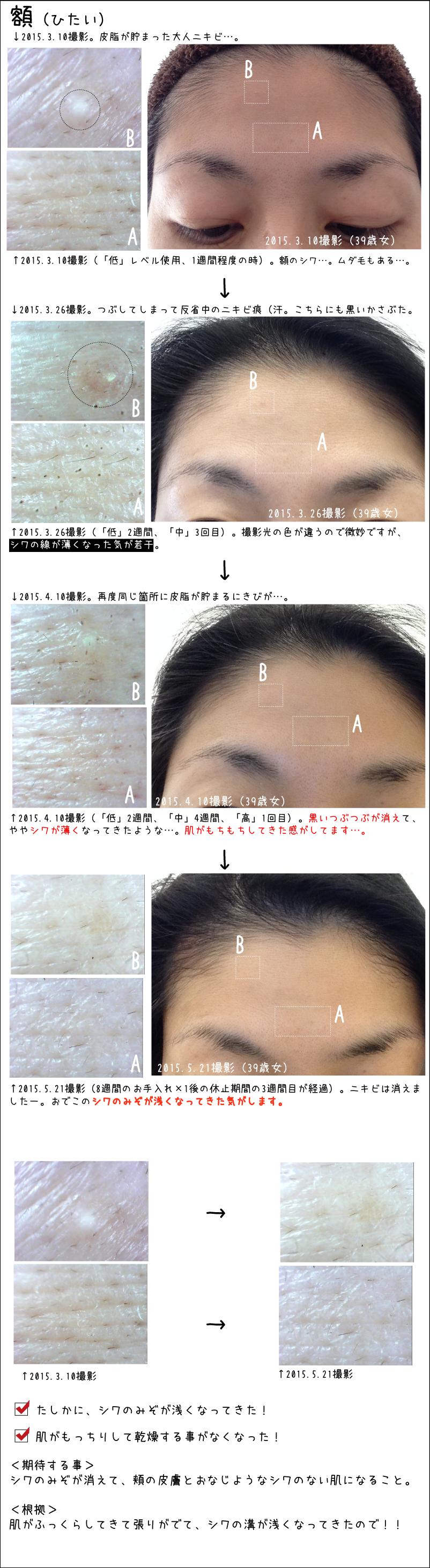 額(ひたい)。2015.5.21撮影(8週間のお手入れ×1後の休止期間の3週間目が経過)。ニキビは消えましたー。おでこのシワのみぞが浅くなってきた気がします。たしかに、シワのみぞが浅くなってきた!肌がもっちりして乾燥する事がなくなった!<期待する事>シワのみぞが消えて、頬の皮膚とおなじようなシワのない肌になること。<根拠>肌がふっくらしてきて張りがでて、シワの溝が浅くなってきたので!!