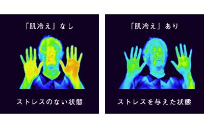 ストレスによる肌荒れのメカニズム