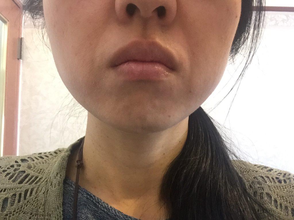 ビーグレンのCセラムを使ったら口の周りが超乾燥してしまったという画像