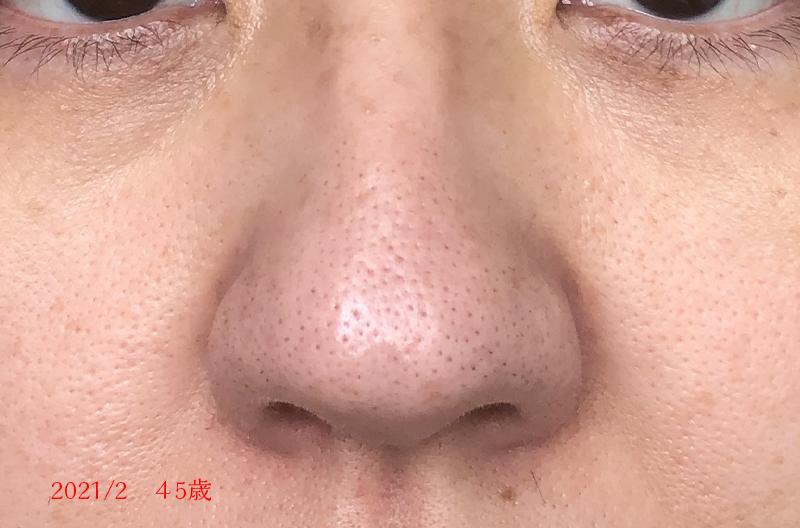 ar肌アラハダ小鼻の毛穴の変化
